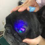 無痛性角膜潰瘍